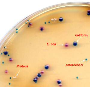 Clarity Agar for UTI Pathogens