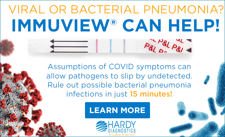 Is it bacterial or viral pneumonia or COVID-19