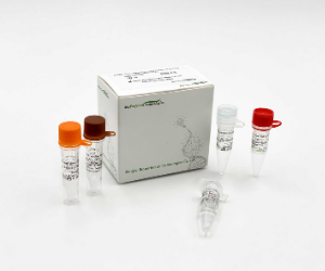 COVID-19 Coronavirus and Influenza A B Virus Real Time PCR Kit