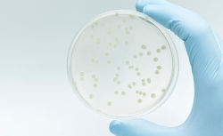 Microbiologics test ready control strains