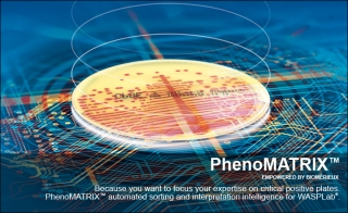 PhenoMATRIX trade for WASPLab reg AI for Sample Interpretation amp Sorting