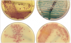 Automatic MRSA reading on chromogenic media